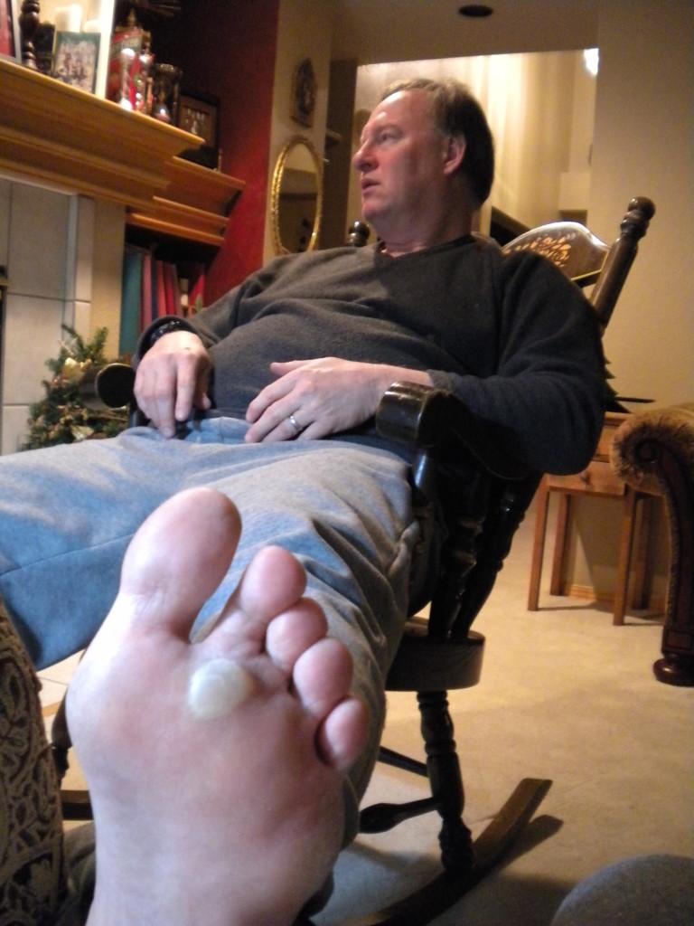 Left foot blister